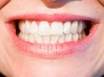 【動画】自宅で歯を白くする『ホワイトニング』のやり方をまとめてみた!